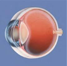 Krankes Auge mit getrübter Linse