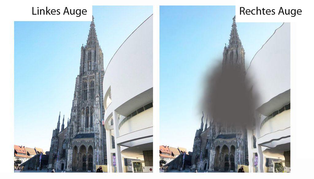 Makuladegeneration, Augenarzt Ulm